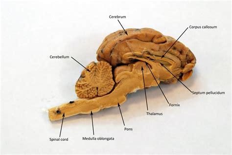 sheep brain anatomy diagram diagram sagittal sheep brain diagram labeled