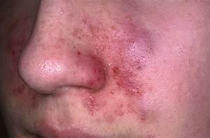 Seborrheic Dermatitis Pictures, Causes, Symptoms, Treatment and Cure Dermatitis