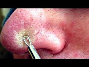 4 of 4 Removing Blackheads & Whiteheads Using A Comedone ...