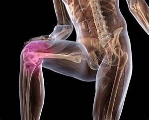 Мази от боли в мышцах и суставах рук
