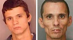 The Real Faces Of Meth Addiction