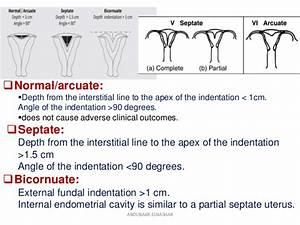 Arcuate Vs Bicornuate Uterus Related Keywords