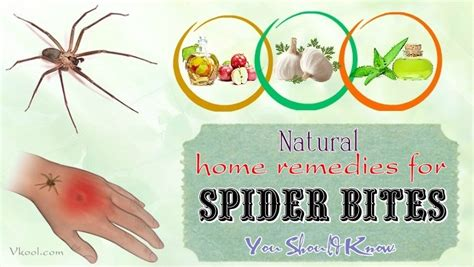16 Natural Home Remedies For Spider Bites You Should Know