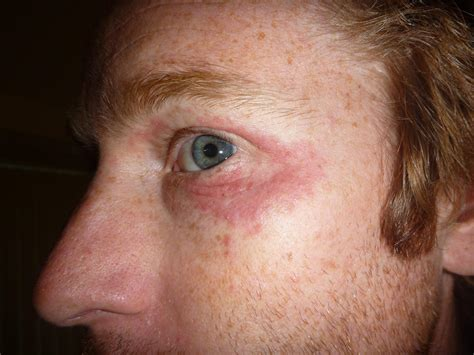 Red Flacky Itchy Rash Around Both Eyes Possibly Caused By