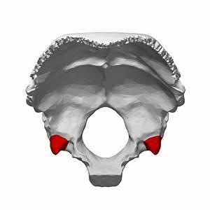 File:Jugular process of occipital bone - close-up13.png ...