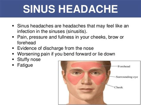persistant head and facial pain jpg 638x479