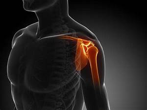 A Guide To Shoulder Injuries
