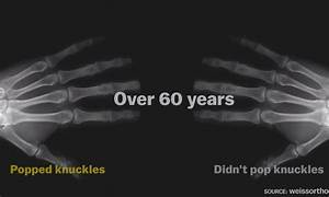 Taking One For The Team  Man Pops Knuckles For Over 60 Years To See If He U0026 39 Ll Develop Arthritis