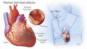 Human Biology Online Lab    Heart Attack Sherina Davis