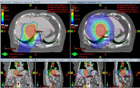 Proton Radiotherapy by Application Of Proton Radiotherapy In Liver Cancer Treatment