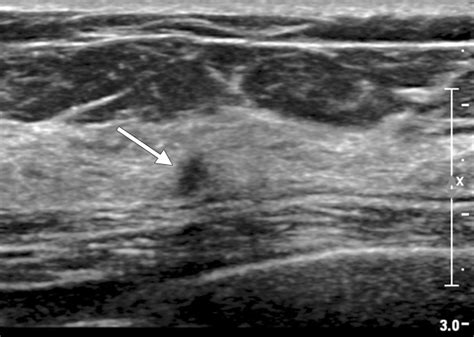 Breast Ultrasound Breast Ultrasound For Cancer Screening