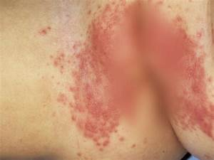 Childhood rashes, skin conditions and infections: photos ...