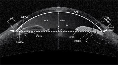 association  baseline anterior segment parameters