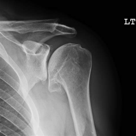 shoulder oa ghj arthritis osteoarthritis upper glenohumeral extremity patients conditions guide