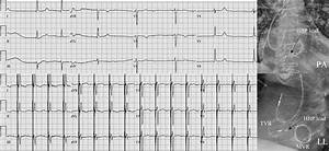 Permanent His-bundle Pacing In Patients With Prosthetic Cardiac Valves
