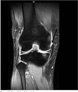 Figure 1 From Medial Collateral Ligament Injury  A New