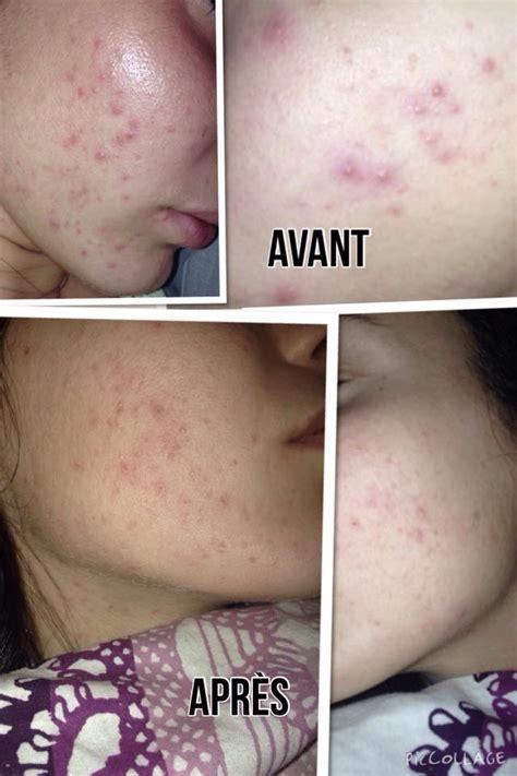 masque anti points noirs ou pores dilates peau neuve