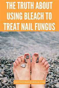 Are You Planning On Using Bleach To Treat Your Nail Fungus