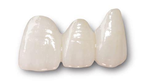 ceramic dental bridges metal  ceramic bridges