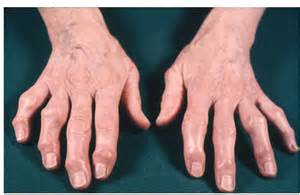 Severe osteoarthritis of the hands affecting the distal inter ... Osteoarthritis