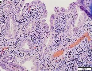 Acalculeuze cholecystitis