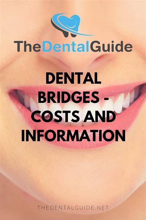 dental bridges costs  information  dental guide
