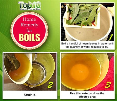 Home Remedies For Boils And Abscesses  Top 10 Home Remedies
