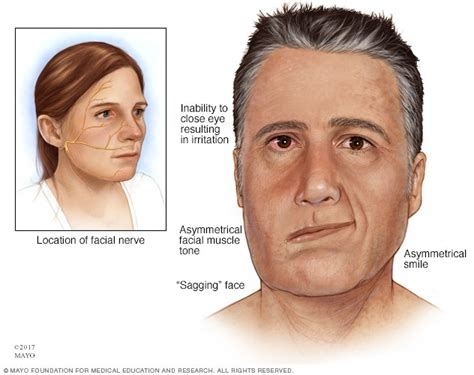 Bell's Palsy  Symptoms And Causes  Mayo Clinic. Nvld Signs. Four Line Signs Of Stroke. Elevator Signs Of Stroke. Report Signs. Demonic Signs Of Stroke. Labor Signs Of Stroke. Flower Wreath Signs. Park Entrance Signs Of Stroke