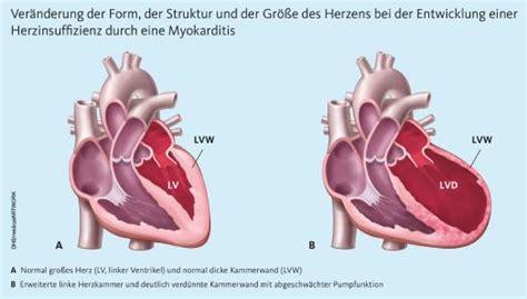 Der arzt sucht in der krankengeschichte nach bei schweren formen einer herzmuskelentzündung folgt eine behandlung mit antiviralen. Herzmuskelentzündung (Myokarditis) wird bei Kindern häufig übersehen, Deutsche Herzstiftung e.V ...