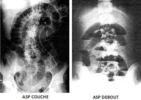 stase stercorale du cadre colique 302 found