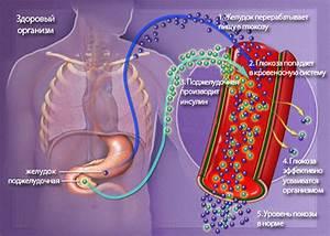 Случаи выздоровления от диабета 2 типа