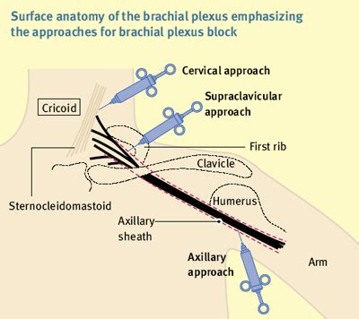 anaesthesia uk applied anatomy  upper limb blocks