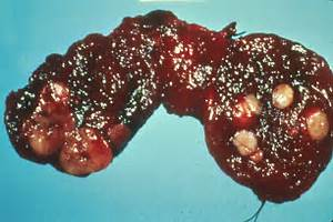Thyroid cancer. Causes, symptoms, treatment Thyroid cancer Thyroid Cancer
