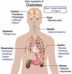diabetes mellitus typ 1 symptome