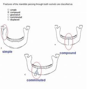 Dentistry Lectures For Mfds  Mjdf  Nbde  Ore  Mandibular