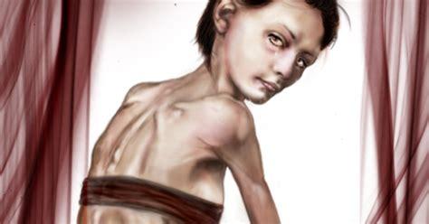 anorexia nerviosa causas  tratamientos