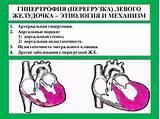 Гипертрофия и гипертония