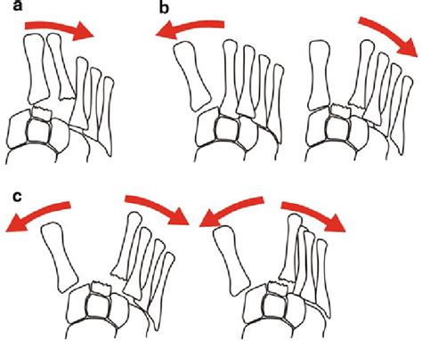Lisfranc injuries are generally high speed injuries which may develop into serious deformities of the midfoot mechanism of injury. Classification of Lisfranc fracture dislocations according to... | Download Scientific Diagram