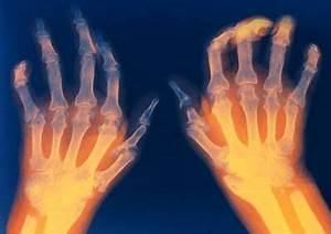 Ревматоидный артрит народное средство лечение