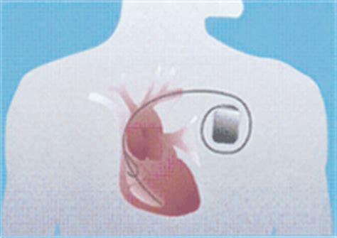 pacemaker chambre stimulateur cardiaque