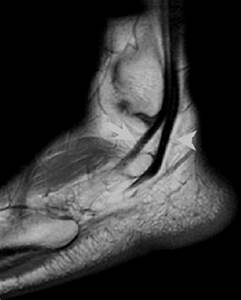 UW MSK Resident Projects : Peroneal Tendon Injury