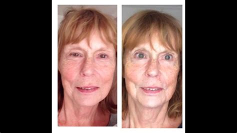 Microcurrent Facelift and the eyes: what you can expect