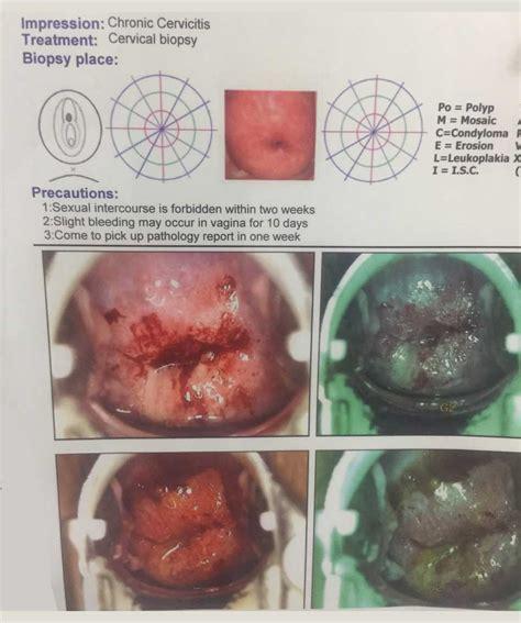 prevention  treatment  cervical cancer sukhi