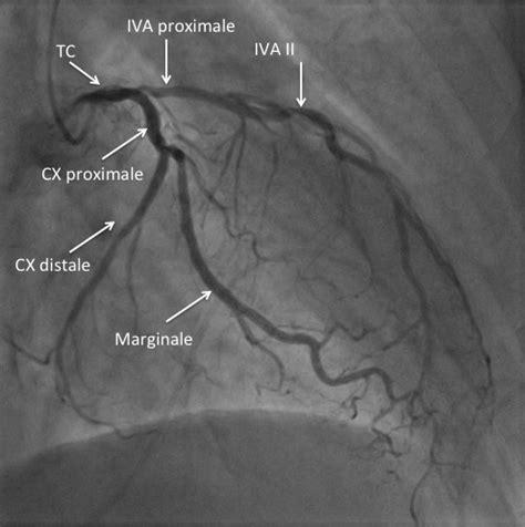 Coeur et arteres