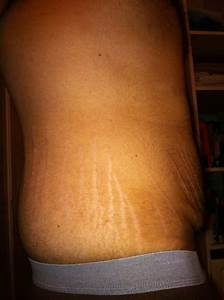 Male With Stretch Marks After Big Weight Loss- What Can I ...
