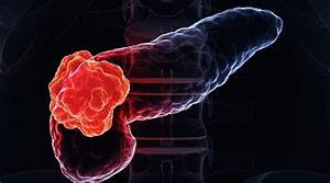 Overview Of Pancreatic Cancer
