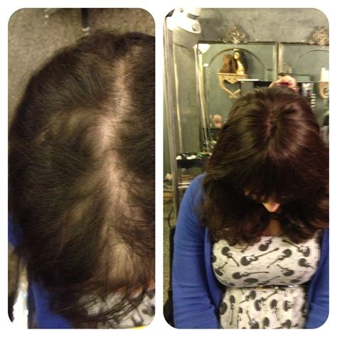 female pattern baldness female hair loss treatment melbourne