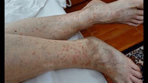 pictures  flea bites  humans symptoms  treatments