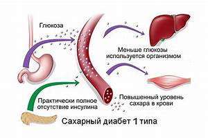 Сахарный диабет 1 типа лечение потенции