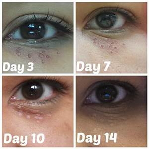 illy ariffin.com: Ko Skin Specialist (REVIEW) Milia Seed ...
